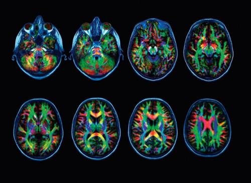 met-het-ouder-worden-vormen-hersenen-meer-langeafstandsverbindingen